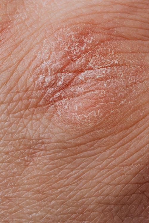 Hud med plamager